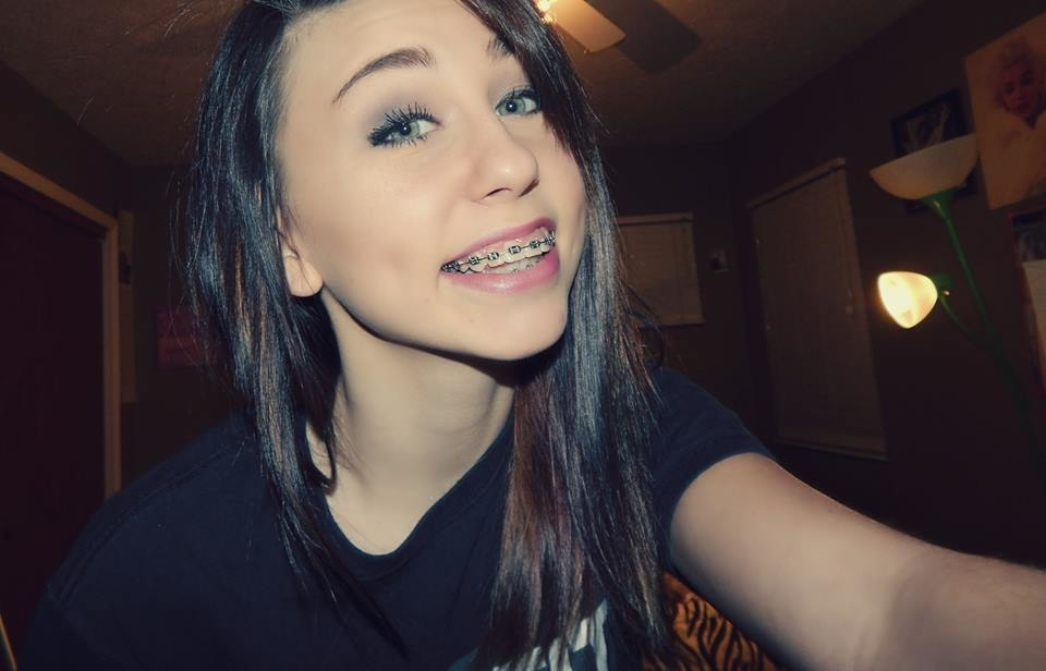 Brunette With Braces
